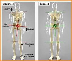 Overcoming injuries // Kinetic Chain imbalances