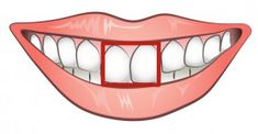 Prized Possessions like Two front teeth come under Symbolic representation of this Ascendant. Loose teeth are a Symbol of Detachment. Firm Roots correspond to Taurus. Health And Beauty, Minions, Decorative Bowls, Simple, Facebook, Infp Personality Traits, Personality Tests, Human Behavior, Relationship Tips