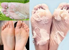 Baby Foot Easy Pack Foot Exfoliant Peel before and after pictures.