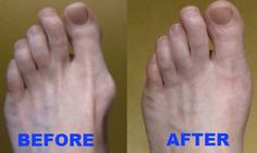 Align Your Bunions Naturally With Our Orthopedic Bunion Corrector. Correct Bunions Without Surgery Fix. Wear Bunion Splint At Night, No Surgery Required. Bunion Remedies, Foot Remedies, Bunion Relief, Pain Relief, Tailors Bunion, Bunion Surgery, Tired Feet, Toe Socks, Tough Day