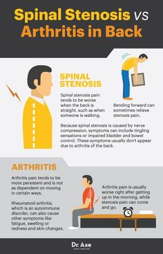 Natural Remedies For Arthritis Spinal stenosis vs. arthritis in back - Dr. Axe - Around 75 percent of people will experience back pain at some point in their lives, and spinal stenosis is a major culprit. Here's how to manage it. Psoriasis Arthritis, Rheumatoid Arthritis Treatment, Arthritis Relief, Types Of Arthritis, Pain Relief, Inflammatory Arthritis, Juvenile Arthritis, Arthritis In Back, Physical Therapy