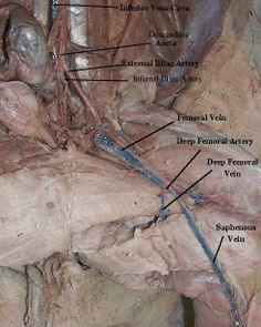Arteries and Veins of Appendages and Abdomen