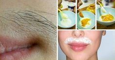 If your upper lip hair frequently embarrasses you and you don't have to time to visit the parlor every single week, here is the solution. What you need are only two essential ingredients, which we bet you have in your kitchen right now. These ingredients when mixed together will work wonders, and they will not