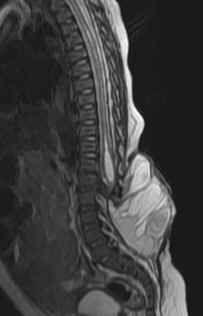 Neuroradiology Cases: Meningomyelocele MRI