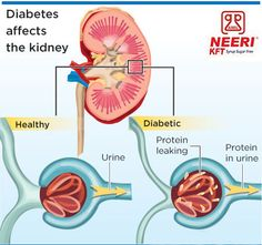 Diabetes is the leading cause of kidney failure. In many countries, half of all people starting dialysis have kidney failure caused by diabetes.