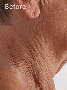Crepe Paper Neck Crepey Skin Crepe Skin Crepey Skin Treatment
