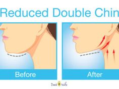 THE BEST EXERCISES FOR GETTING RID OF THAT UNWANTED DOUBLE CHIN & NECK FAT (VIDEO)
