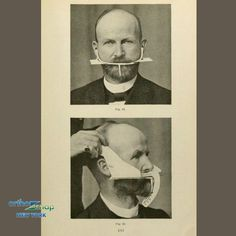 Teeth Straightening in Thanks God for OrthoSnap! OrthoSnap New York– Straight Teeth Without Br Invisible Teeth Aligners, Invisible Braces, Dental Jokes, Dental Art, Straight Teeth Without Braces, Manhattan, Emergency Dental Care, Teeth Alignment, Funny Vintage Photos