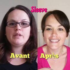 shoupinettetv_sleeve  #beforeafter #avantapres #pertedepoids #sleevegastrique #shoupinettetv #sleevegastrectomie #chirurgiedelobesite Sleeve Gastrectomie, Instagram