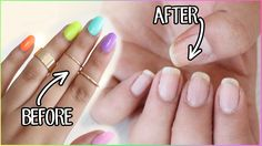 HOW TO REMOVE FAKE NAILS: Kiss Glue On Nails, Gel Nails, Gel Polish etc!