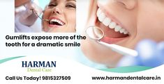Gumlifts expose more of the tooth for a dramatic smile. We offer teeth and gum contouring services as a cosmetic solution for patients. Manjeet Inder Kaur at 9815327509 Best Dentist, Dentist In, Dental Cosmetics, Dental Problems, Contouring, Dental Care, Appointments, Tooth, Smile