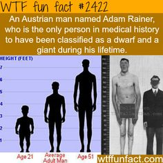 Adam Rainer, the dwarf and a giant! - WTF fun facts