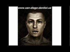 Implant Dentist San Diego
