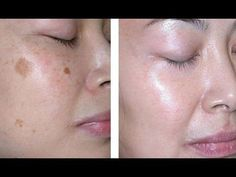 (633) It Removes The Spots From Your Face In Just 3 Nights! - YouTube