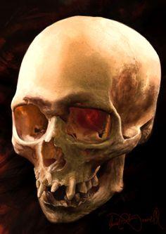 Skull Master Study