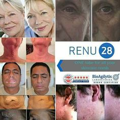 ASEA'S Redox Signaling Molecules & Renu28 only at EarthPatriots.com