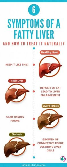 Symptoms Of a Fatty Liver And How To Treat It Naturally