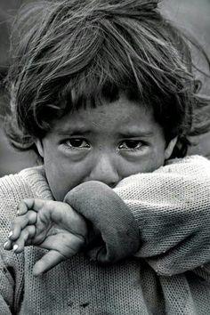 Poor little baby - Health Syrian Children, Poor Children, Precious Children, Save The Children, Beautiful Children, Emotional Photography, Dark Photography, Children Photography, Black And White Photography