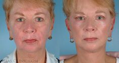 Laser skin resurfacing San Francisco