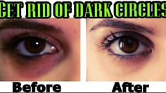 How to get rid of dark circles under eyes fast. Removing dark circles under the eyes makes your eye's dermatome beautiful. And you can even sit at home. Dark Circle Cream, Dark Circle Remedies, Wrinkle Remedies, Dark Circles Under Eyes, Acne Skin, Skin Brightening, Glowing Skin, Good Skin, Skin Care Tips