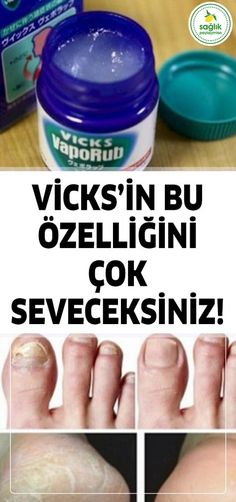 10 Great Uses for Vicks Vicks için 10 Harika Kullanım 10 Great Uses for Vicks - Healthy Beauty, Health And Beauty, Health And Wellness, Health Fitness, Natural Cough Remedies, Flu Remedies, Uses For Vicks, Vicks Vapor, Les Chakras
