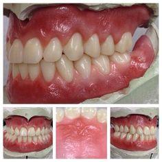 Protésico Dental, Dental Hygiene Student, Dental Life, Dental Assistant Jobs, Dental Lab Technician, Dental Anatomy, Beautiful Teeth, Dental Office Decor, Dental Design