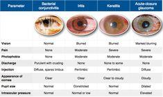 Bacterial Conjunctivitis vs. Iritis vs. Keratitis vs. Acute-Closure Glaucoma Rosh Review