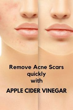 How to use apple cider vinegar to erase all acne scars from your face #IngrownHairRemedies Scar Remedies, Natural Acne Remedies, Sleep Remedies, Natural Cures, Herbal Remedies, Back Acne Treatment, Coconut Oil For Acne, Acne Marks, Acne Scar Removal