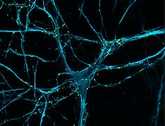 Killer in the brain could help treat Parkinson's - health - 17 October 2014 - New Scientist (Image: Soledad Galli, Parkinson's UK / University College London)