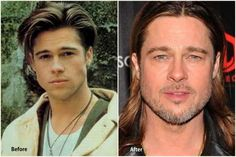 Brad Pitt Plastic Surgery Brad Pitt Before and After photo
