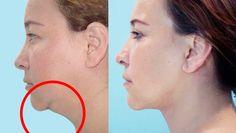Con estos sencillos remedios podrás verte mejor y atenuar esa parte de nuestra piel que se convierte más flexible y flácida.