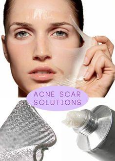 Natural Acne Scar Remedy #skincaretips