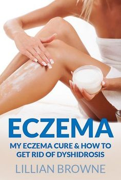 Eczema: My Eczema and Dyshidrosis Cure. Learn simple cure and a real life saver. No more dealing with your sore hands. You are about to get rid of your dyshidrosis for good!