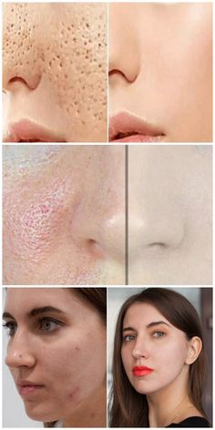 Pores on the face will DISAPPEAR in 3 days if done .- Поры на лице ИСЧЕЗНУТ через 3 дня, если делат… The pores on the face will DISAPPEAR in 3 days, if you do like this … - Beauty Advice, Beauty Care, Beauty Skin, Beauty Makeup, Eye Makeup, Turmeric Mask, Facial Skin Care, Makeup Revolution, Diet And Nutrition