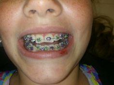 My bff got her braces on today 04-16-13