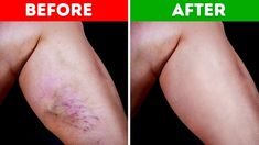 The appearance of varicose veins is not very pleasant. They usually appear on the stump, sometimes on the face. Varicose veins can affect women's self-esteem in particular. Varicose veins occur as a result of pregnancy, [. Varicose Vein Remedy, Varicose Veins, Le Psoriasis, Natural Health Remedies, The Cure, Dark Knuckles, Leg Swelling, Skin Whitening, Health Tips