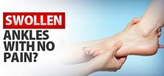 Do You Have a Swollen Ankle with No Pain?