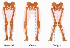 valgus, varus and normal stances.