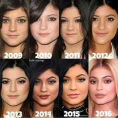 Kylie Jenner had the most dramatic change throughout the years , which were her lips ,but although she initially denied it, Kylie is now is open about it and talks about how she uses lip fillers. Kylie Jenner Plastic Surgery, Celebrity Plastic Surgery, Kylie Jenner Body, Kendall And Kylie Jenner, Kardashian Family, Kardashian Jenner, Botox Lips, Kylie Makeup, Celebrities Before And After