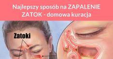 Zapalenie zatok to wyjątkowo uciążliwa dolegliwość. Przewlekłe zapalenie zatok objawia się bólem głowy, zatkanym nosem, nieświeżym oddechem, zmęczeniem, a nawet kaszlem i gorączką. Na zapalenie zatok często przepisywane są antybiotyki, ...