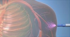 FDA Approves First of New Migraine Drugs | WebMD
