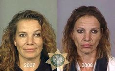 Keeping this article in the back pocket for when it's time to have this chat: Before and after photos of drug users