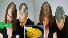 Muchas personas hemos deseando que el cabello crezca rápidamente, sin embargo, no existe ningún remedio que logre crecer 8cm de cabello en un mes, ya que es biológicamente imposible. Pero si existen algunas formas de acelerar el crecimiento del cabello. El siguiente remedio gracias a las propiedades de sus principales ingredientes estimula el crecimiento del …