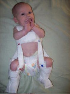 5b5045525ce87 How Parents Can Help Their Baby s Hip Dysplasia