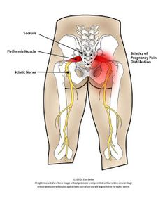 How to Cure Sciatica at Home   sciatic nerve pain   sciatica is a general term for pain originating from the sciatic nerve   #sciatica_treatment #sciatica_relief