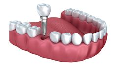 Dental implants are the preferred replacement for lost teeth. For  More Details About Dental Implants Please Call Us: 619-825-7779 & And La Perle Dental Official Website. Thank You.