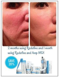 Check out these REAL results... can your skincare do this in just 60 days? Only one more week for the R+F Holiday Special & Huge savings...Receive a FREE Eye Cream with purchase of regimen plus tool before end of the month!!!! Let me know.....Everybody Deserves great skin ..... Message me today!  ReInVentYourSkin@gmail.com   https://spohlman.myrandf.com