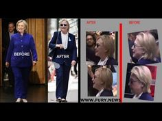 "MEDICAL CONJECTURE: Hillary Clinton ""LATE STAGE SYPHILIS"" - She has ALL THE SYMPTOMS. - YouTube"