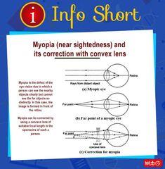 The Retina, Vision Eye, Science News, Focal Length, Lens, Bullet Journal, Learning, Studying, Klance
