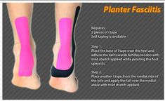 Kinesiology taping instructions for plantar fascitis (Mobility Exercises Plantar Fasciitis) Facitis Plantar, Plantar Fasciitis Remedies, Plantar Fasciitis Exercises, Plantar Fasciitis Treatment, Taping For Plantar Fasciitis, Kinesio Tape, Kinesiology Taping, Heel Pain, Foot Pain